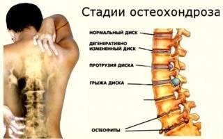 Лечение пиявками остеохондроз шейного отдела: кому показана гирудотерапия