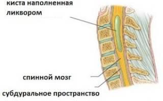 Отличие кисты от грыжи позвоночника