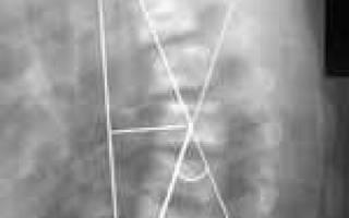 Степени кифоза грудного отдела позвоночника рентген методика