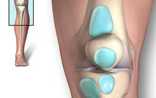 Шишка на колене — причины и лечение
