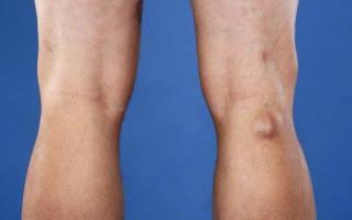 На внутренней стороне колена образовалась шишка