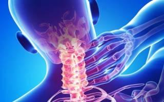 Защемление сосудов в шейном отделе симптомы Остеохондроз шейного отдела