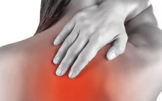 Боль вверху в спине справа от позвоночника