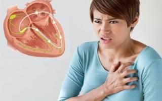 Вегетативные расстройства при шейном остеохондрозе