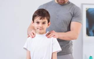 Искривление позвоночника ребенка