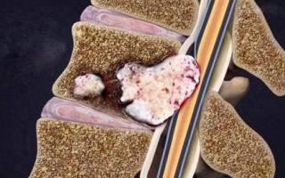 Рак метастазы в позвоночнике симптомы и лечение