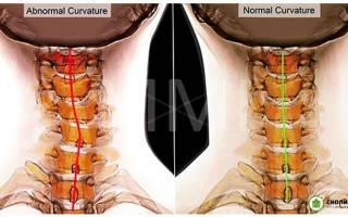 Шейный сколиоз — симптомы, лечение, степени сколиоза шейного отдела позвоночника