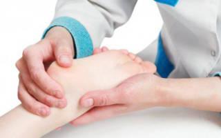 Растяжение связок колена у ребенка симптомы