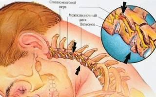 Перелом шейного отдела позвоночника причины и лечение
