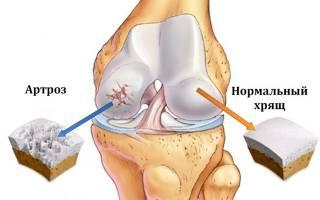 Чем снять острую боль в коленном суставе