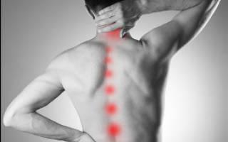 Почему после сна болит спина по утрам и как лечить такую боль?