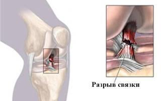 Сколько времени восстанавливается колено после травмы