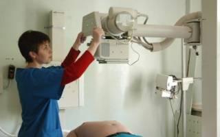 Контрастный рентген почек – как подготовится к процедуре