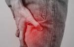 Как болят ноги при грыже позвоночника