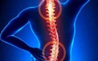 Симптомы и лечение болезней позвоночника