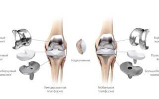 Как мыться после операции на колено