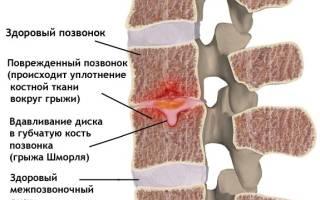 Грыжа шморля поясничного отдела позвоночника лечение уколы