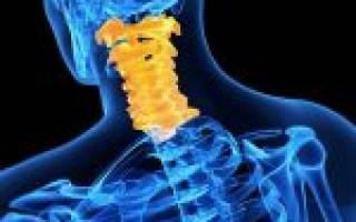 Спондилоартроз шейного отдела позвоночника симптомы