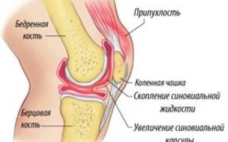 Ушиб колена при падении или ударе: первая помощь при травме