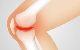 Сильная боль в колене после ушиба