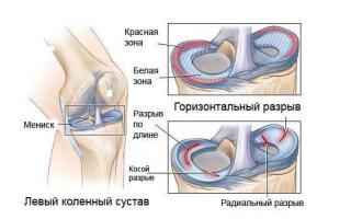 Как выглядит колено при разрыве мениска