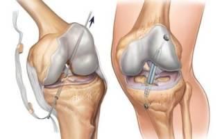 Осложнения после операции на связках колена