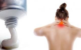 Боли в шейном отделе позвоночника лечение мази