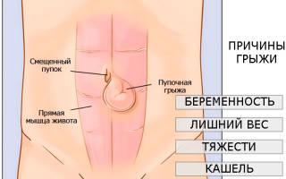 Болит спина после операции на пупочную грыжу