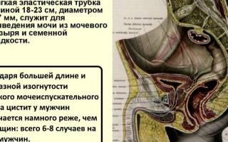 Уретрит цистит у мужчин — Цистит