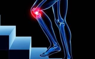 Боль в коленях при ходьбе диагноз