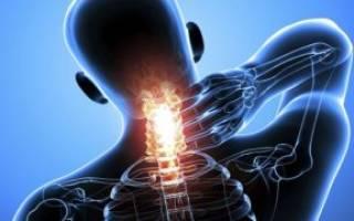 Боли в шейном отделе позвоночника и плечах: причины и лечение
