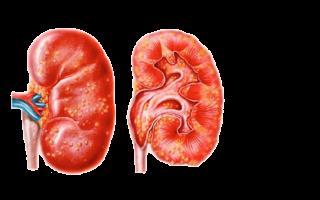 Воспаление почек у женщин: симптомы и лечение препаратами