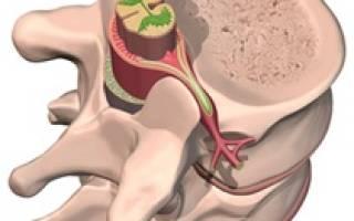 Стеноз грудного отдела позвоночника симптомы и лечение