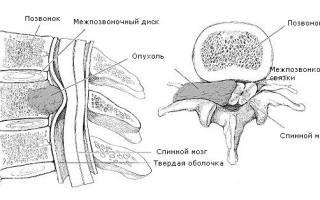 Сдавление спинного мозга в грудном отделе позвоночника