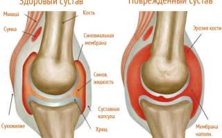 Подагра в колене симптомы и лечение