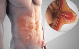 Воспаление паховой грыжи у мужчин симптомы лечение
