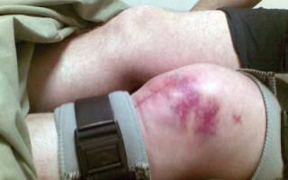 Что делать при переломе открытом колена