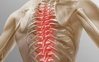 Дорсопатия грудного отдела позвоночника что это Остеохондроз грудного отдела