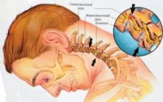 Что проколоть при остеохондрозе шейного отдела позвоночника