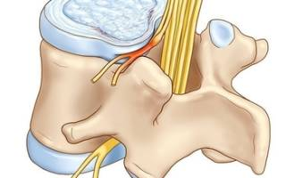 Протрузия дисков позвоночника — диагностика и лечение