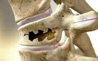 Лечение компрессионного перелома позвоночника поясничного отдела лекарства