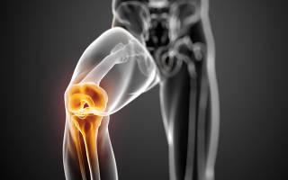 Упражнения с бинтом мартенса для колена