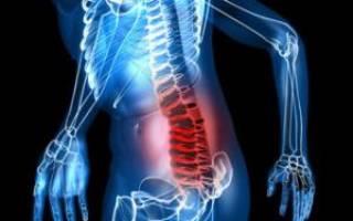 Грыжа поясничного отдела позвоночника – симптомы, лечение, упражнения