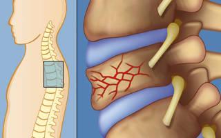 Какие упражнение надо делать после перелома позвоночника
