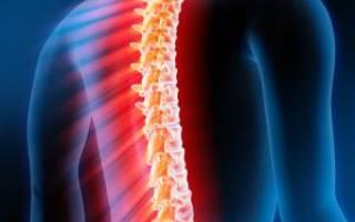 Боль в позвоночнике: виды, причины, симптомы, лечение