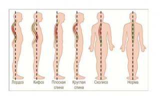 Физиологический изгиб позвоночника кзади называется