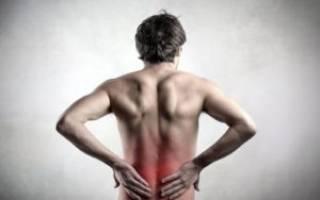 Остеохондроз крестца отдела позвоночника симптомы и лечение