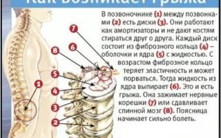 Упражнения на доске евминова при позвоночной грыже видео