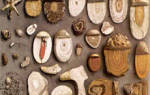 Виды камней в почках по их химическому составу