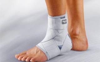 Как и когда можно начать ходить после перелома лодыжки без костылей после снятия гипса